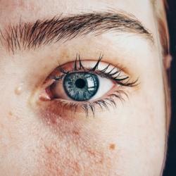 sintomas de rosacea como tratara maquillarla
