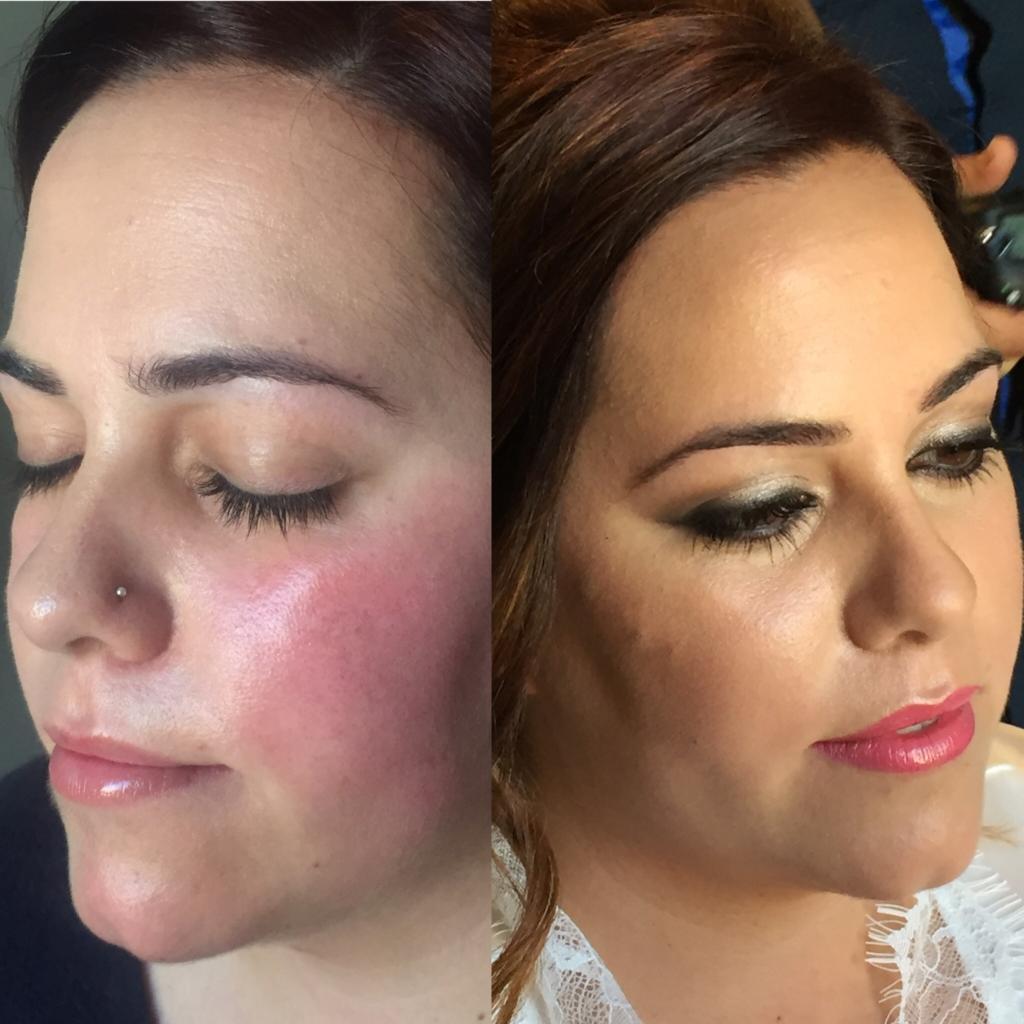 sintomas de rosacea como tratarla maquillarla